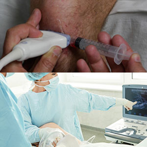 CME - Ultrasound-Guided Vascular Access & Regional Anesthesia