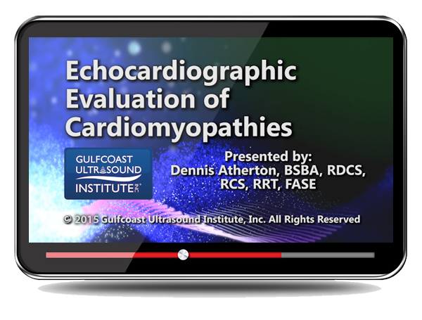 Echocardiographic Evaluation of Cardiomyopathies