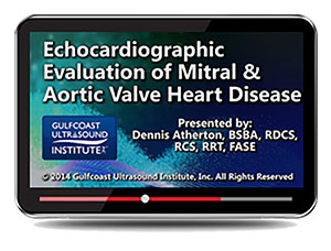 Echocardiographic Evaluation of Mitral and Aortic Valve Heart Disease