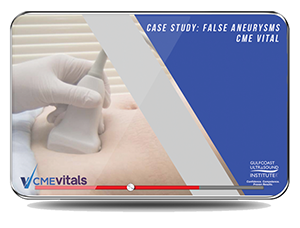 CME - Case Study: False Aneurysms