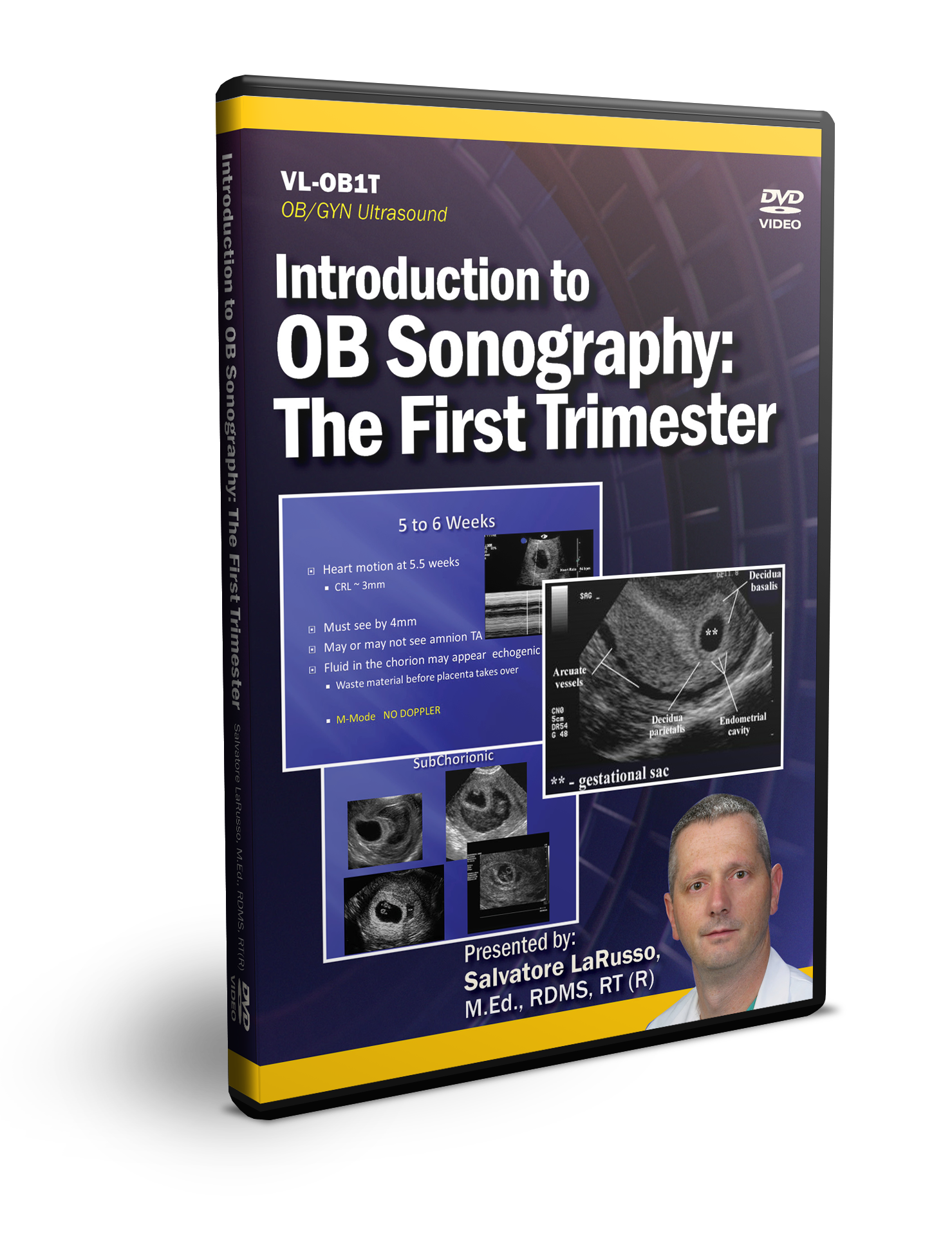Introduction to OB Sonography The First Trimester