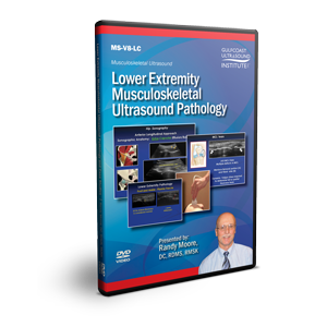Lower Extremity Musculoskeletal Ultrasound Pathology
