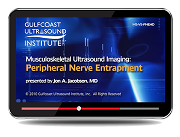 CME - Musculoskeletal Ultrasound: Peripheral Nerve Entrapment