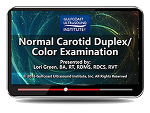 Normal Carotid Duplex/Color Examination