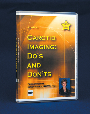 Carotid Imaging Do`s and Don`ts