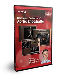 Ultrasound Evaluation of Aortic Endografts - DVD
