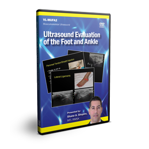 Ultrasound Evaluation of the Foot and Ankle