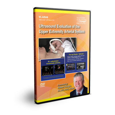 Ultrasound Evaluation of the Upper Extremity Arterial System