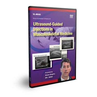 Ultrasound-Guided Injections in Musculoskeletal Medicine