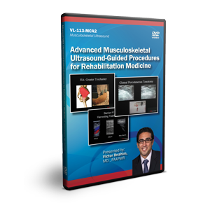 Advanced Musculoskeletal Ultrasound-Guided Procedures in Rehabilitative Medicine