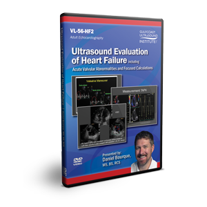 Ultrasound Evaluation of Heart Failure