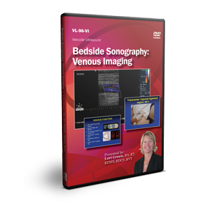 Bedside Sonography: Venous Imaging