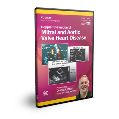 Doppler Evaluation of Mitral & Aortic Valve Heart Disease