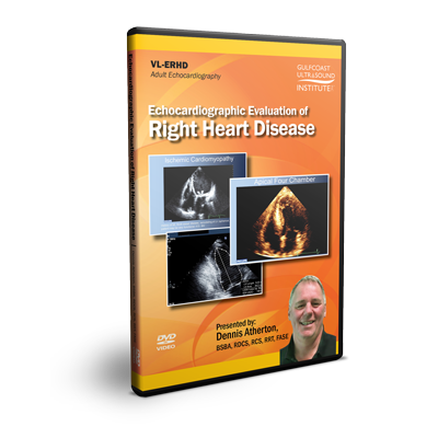 Echocardiographic Evaluation of Right Heart Disease