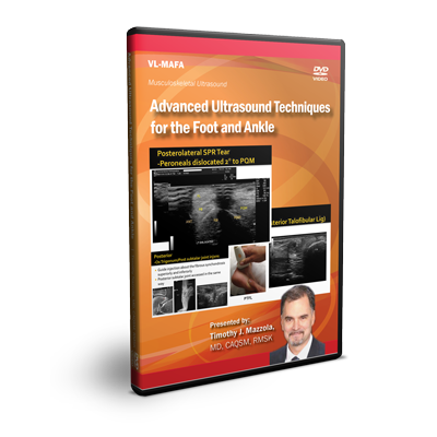 Advanced Ultrasound Techniques for the Foot and Ankle