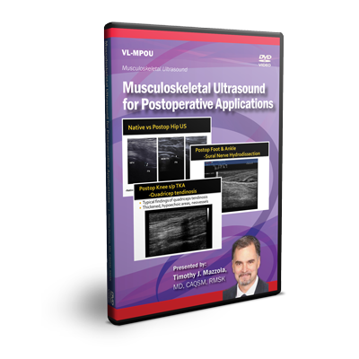 Musculoskeletal Ultrasound for Postoperative Applications