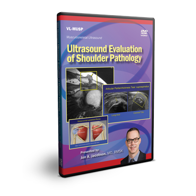 Ultrasound Evaluation of Shoulder Pathology