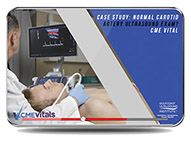 CME - Case Study: Normal Carotid Artery Ultrasound Exam?