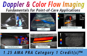 Doppler and Color Flow Imaging: Fundamentals for Point-of-Care Applications