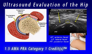 Musculoskeletal Ultrasound Evaluation of the Hip