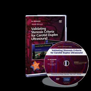 Validating Stenosis Criteria for Carotid Duplex Ultrasound